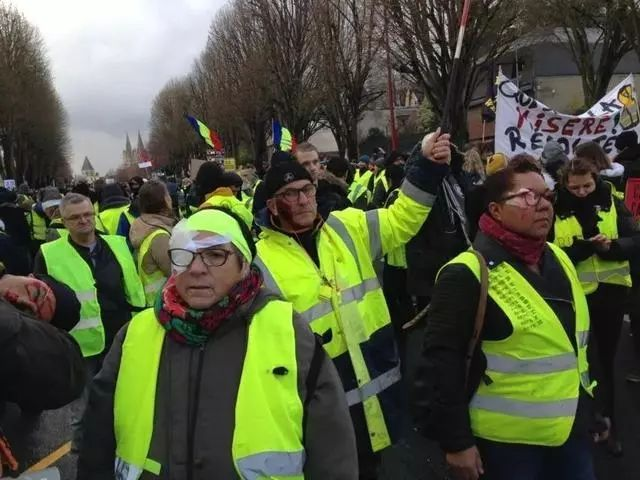 于是,近日的抗议中,有许多人造了赞许受伤的罗德里格斯,纷纷扮上了独眼造型。