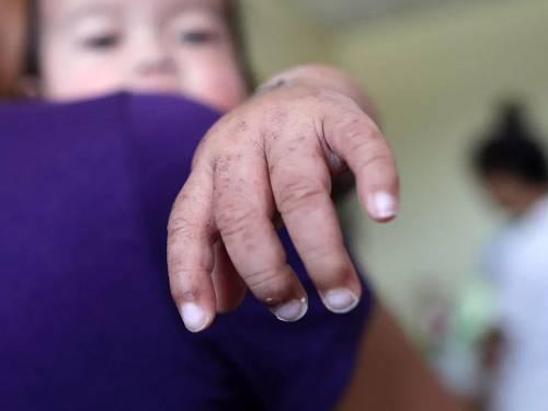 这种疫苗救了2100万人!但阴谋论让病毒再次泛滥,美国人日本人都信了