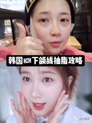 网红为拍摄动态tvc整容,图/小红书:小猪姐姐