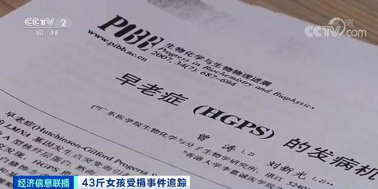 12月17日,吴花燕的基因和染色体的检测效果出来后,大夫会诊后判定,吴花燕所患疾病专门稀奇,是早老症。