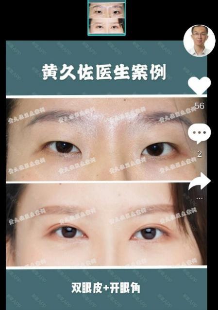 (新氧APP黄久佐医生案例)