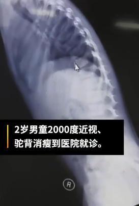 2岁男童近视两千多度 被确诊患上马凡综合征