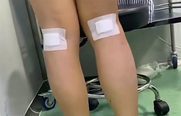女孩为瘦腿切断神经!卫健委发话:各地禁止开展此类手术